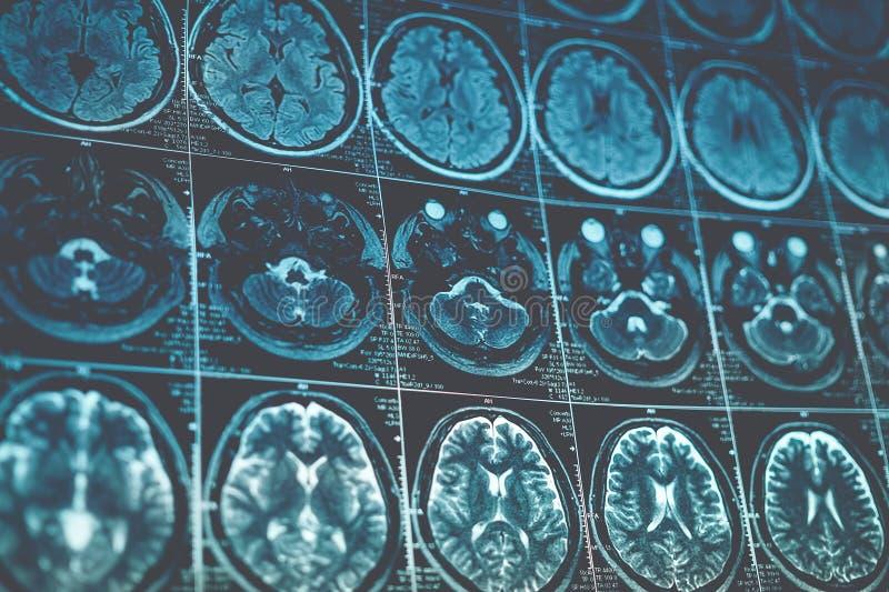 Het beeld van MRI of van de magnetische resonantie van hoofd en hersenenaftasten Sluit omhoog gestemde mening, royalty-vrije stock foto's