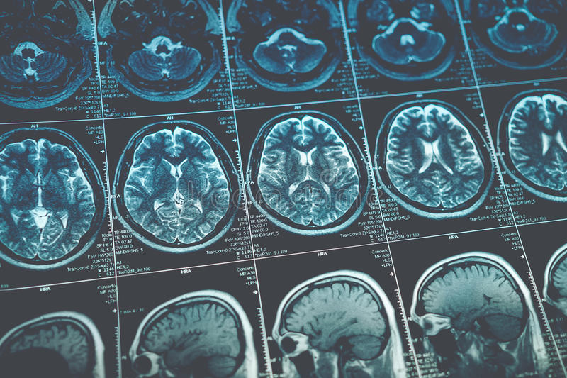 Het beeld van MRI of van de magnetische resonantie van hoofd en hersenenaftasten Sluit omhoog mening royalty-vrije stock afbeeldingen