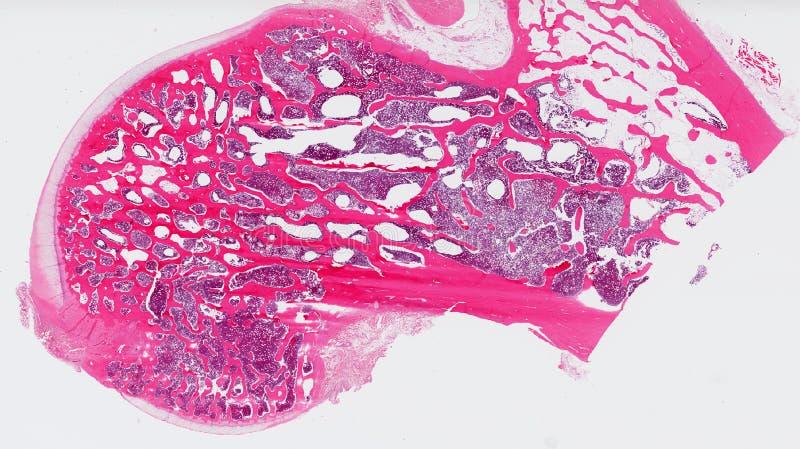 Het been van de heup (dijbeen) stock foto