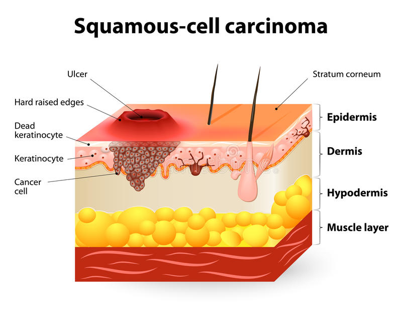 Het carcinoom van de Squamouscel royalty-vrije illustratie