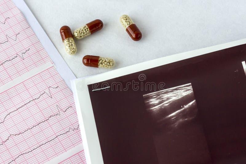 Het cardiogram met ultrasone klankweergave of echografie van hersenschepen en met pillen sluit omhoog royalty-vrije stock fotografie