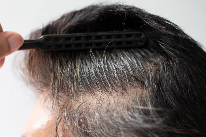 Het close-uphaar groeit op het hoofd van een oude vrouw royalty-vrije stock fotografie