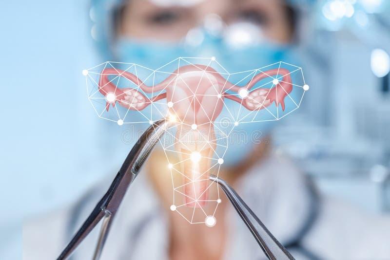 Het concept operatie van de baarmoeder royalty-vrije stock afbeeldingen