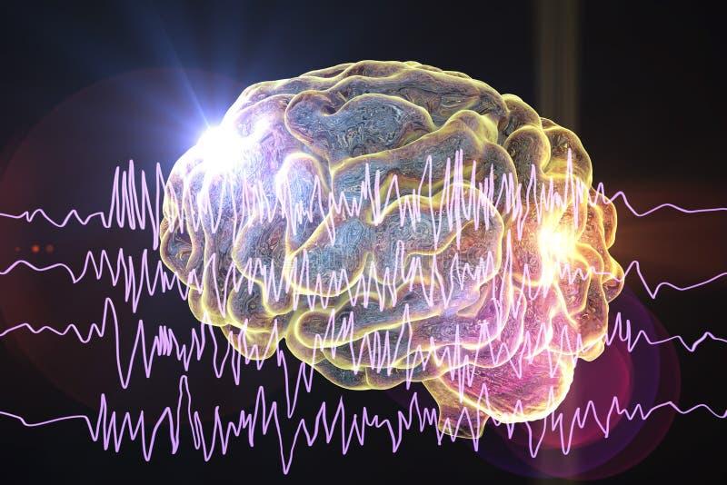 Het concept van de epilepsievoorlichting royalty-vrije illustratie