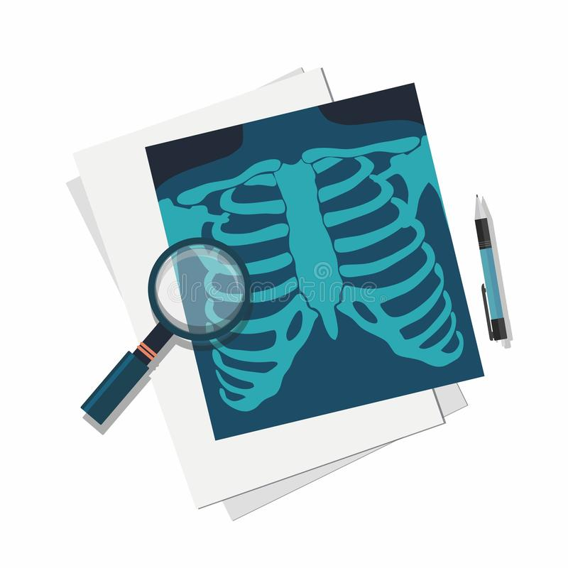 Het concept van de geneeskunde Röntgenstraallongen, meer magnifier en pen vector illustratie