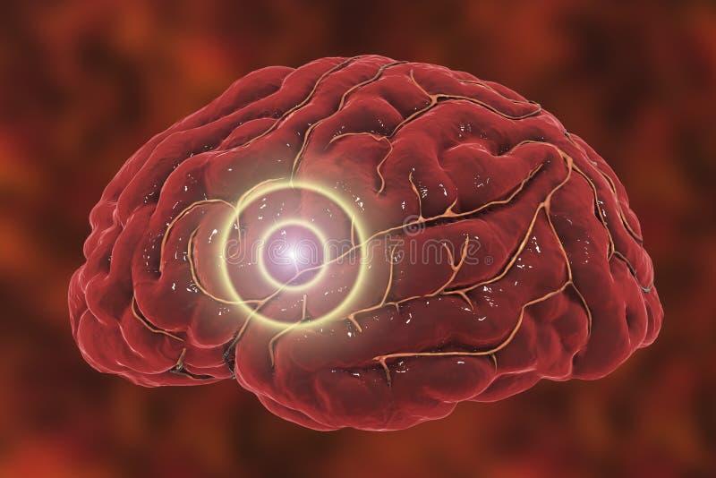 Het concept van de hersenenslag royalty-vrije stock afbeeldingen