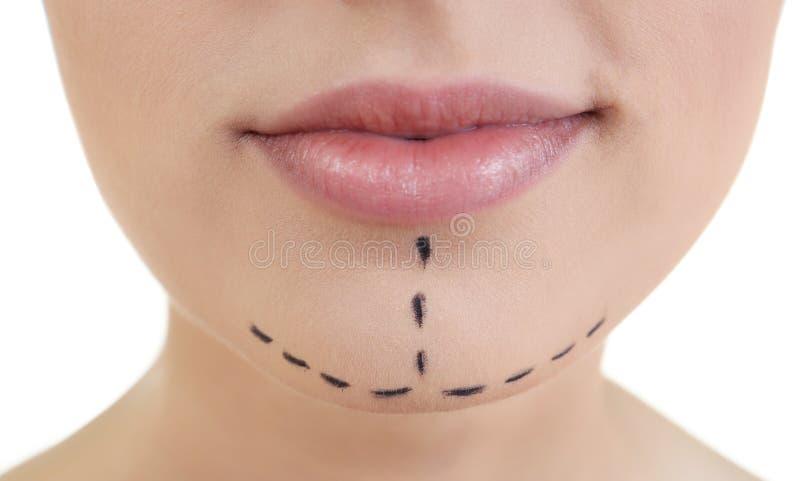 Het concept van de plastische chirurgie Portret van Mooie Vrouw stock afbeelding