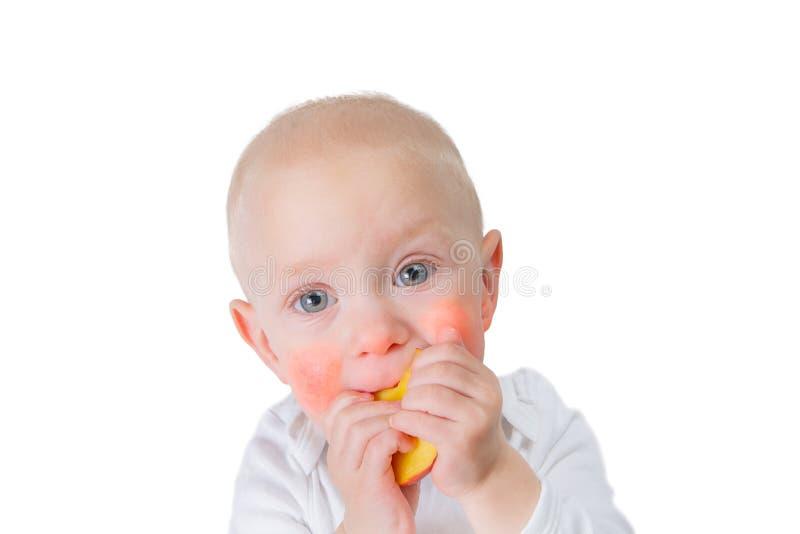 Het concept van de voedselallergie - baby met dermatitis op wangen stock foto's