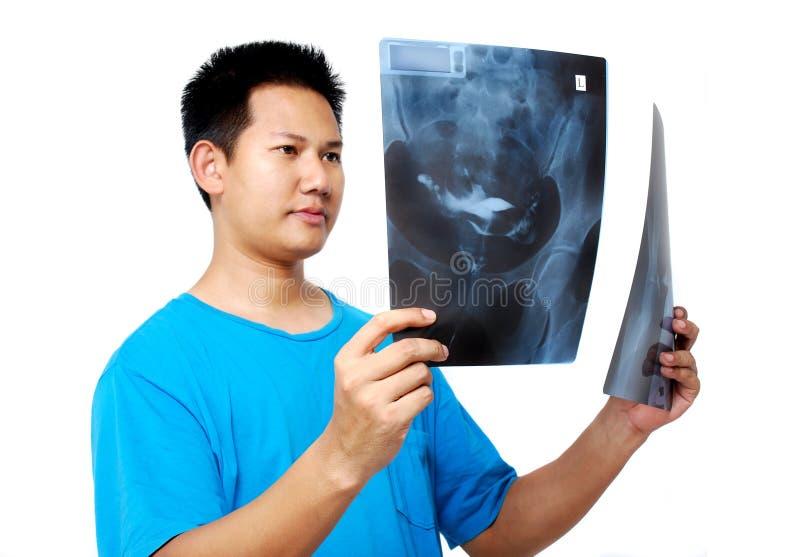 Het controleren van de film van de Röntgenstraal stock afbeeldingen