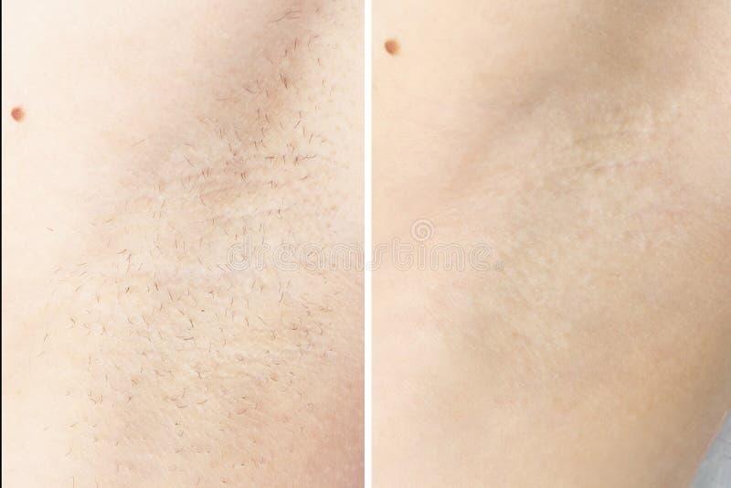 Het in de was zetten de kosmetische resultaten van de ontharingsprocedure voordien na oksel royalty-vrije stock foto