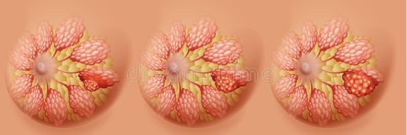 Het diagram van borstkanker in drie stadia vector illustratie