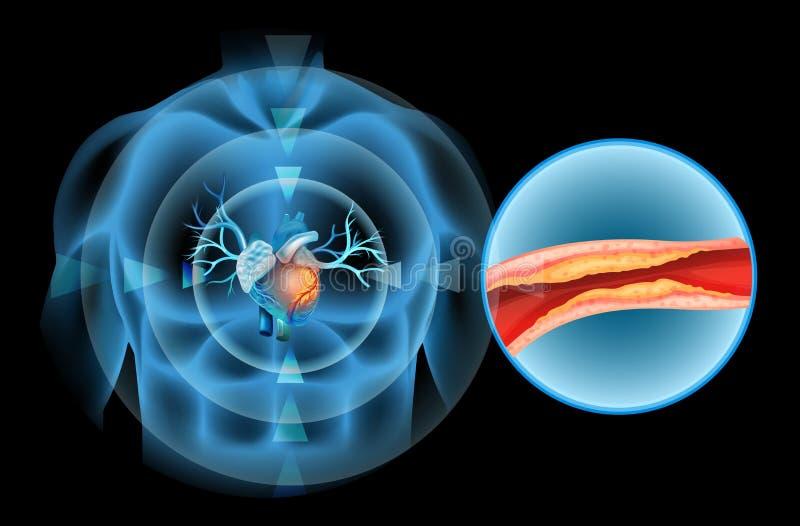Het diagram van de hartcholesterol in mens stock illustratie