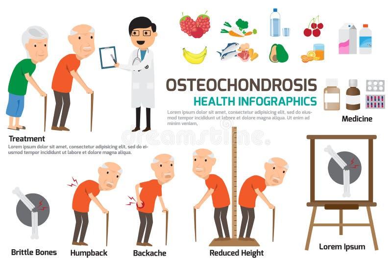 Het element van Osteochondrosisinfographics Element van osteochondrosis stock illustratie