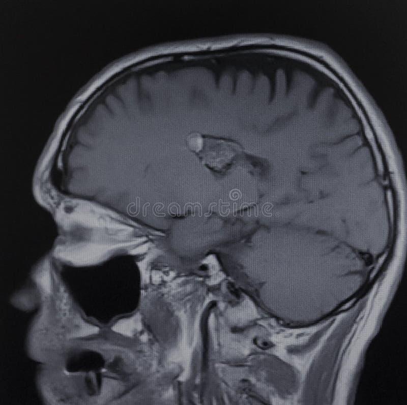 Het examen van de peesknopenhersenen van Mricavernoma stock afbeelding