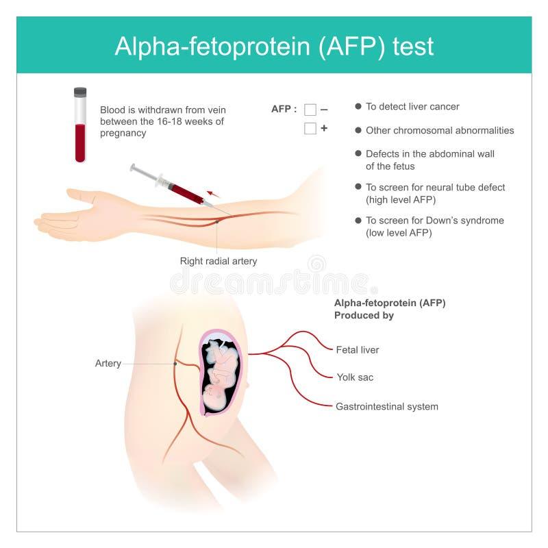 Het Gebruiksanalyse van de alpha--fetoproteinafp test door AFP niveau aan dete stock illustratie