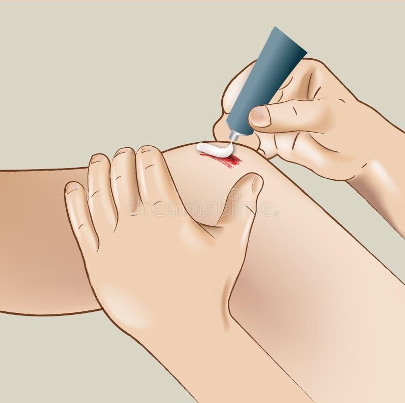 Het gewonde knie helen vector illustratie