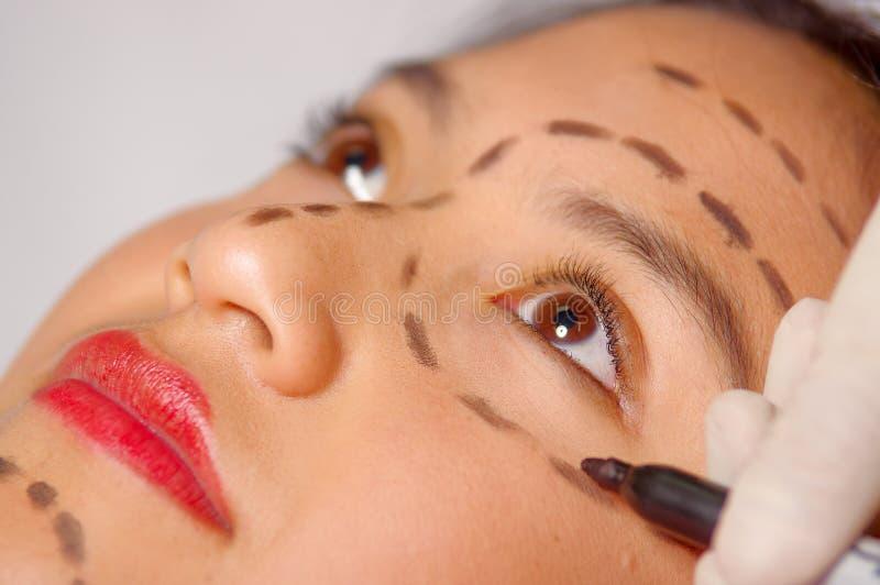 Het gezicht die van de close-up jonge vrouw voor kosmetische die chirurgie met lijnen voorbereidingen treffen op huid, arts worde stock fotografie