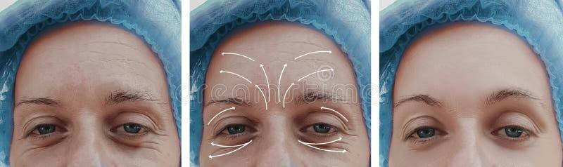 Het gezicht van de vrouwenhuid rimpelt effect de correctie van behandelingsresultaten before and after procedures, pijl royalty-vrije stock foto's