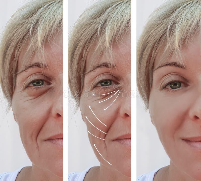 Het gezicht van de vrouwenhuid rimpelt effect de correctie van chirurgieresultaten before and after procedures, pijl stock afbeeldingen