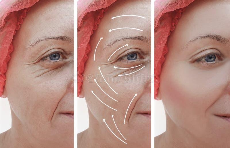 Het gezicht van de vrouwenhuid rimpelt effect correctie before and after procedures, pijl stock foto