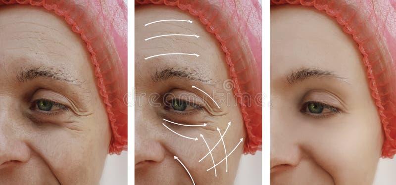 Het gezicht van de vrouwenhuid rimpelt effect resultatencorrectie before and after procedures, pijl royalty-vrije stock afbeeldingen