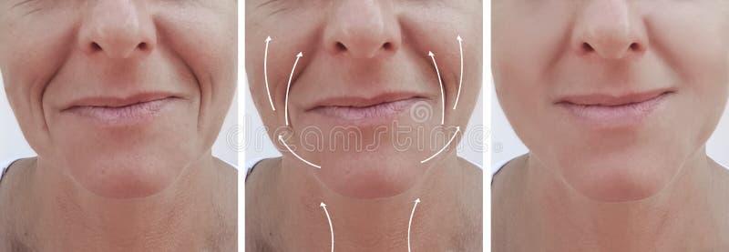 Het gezicht van de vrouwenhuid rimpelt effect het verouderen de correctie van chirurgieresultaten before and after procedures, pi royalty-vrije stock afbeeldingen