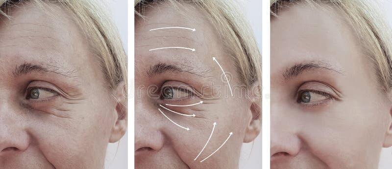 Het gezicht van de vrouwenhuid rimpelt effect het verouderen resultatencorrectie before and after procedures, pijl stock fotografie