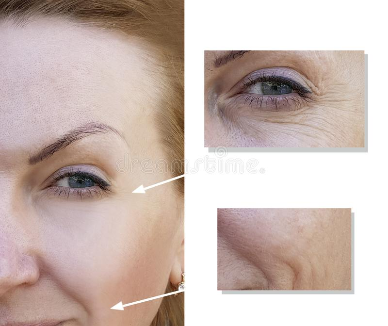 Het gezicht van een bejaarde chirurgievrouw rimpelt jong het gezichtscollageen van de de dermatologiebehandeling, before and afte royalty-vrije stock foto