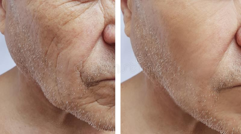 Het gezichtsbejaarde geduldige voorhoofd rimpelt injectie het antiaging effect gezicht van de geneeskundetherapie before and afte stock foto