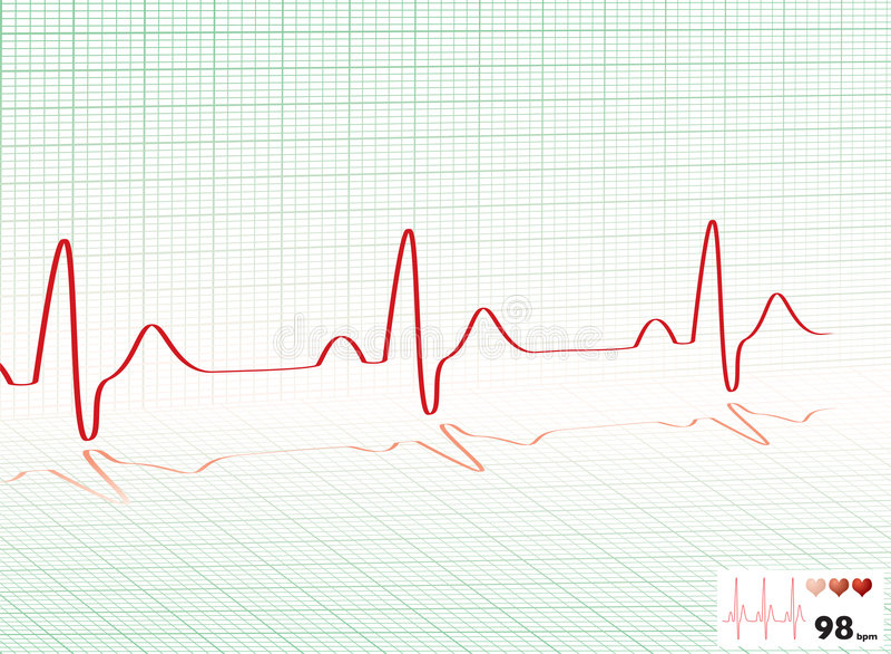 Het hart sloeg groen net royalty-vrije illustratie