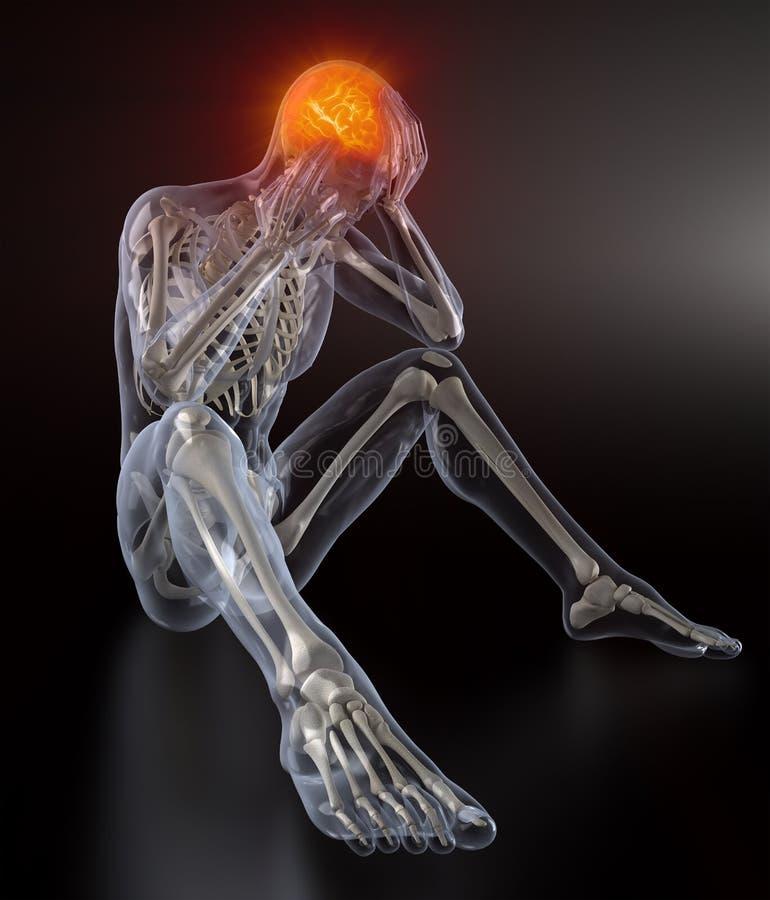 Het hoofd concept van de Pijn stock illustratie