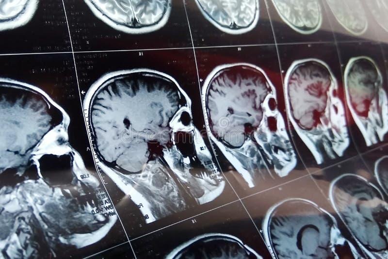 Het hoofdaftasten van MRI op donkere blauwe kleur als achtergrond Van het röntgenstraalgeneeskunde en medicijn concept vector illustratie