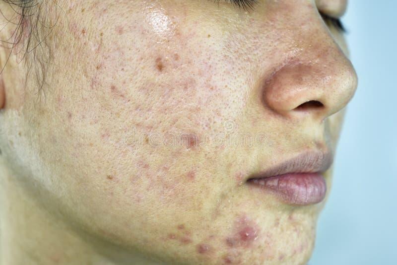 Het huidprobleem met acneziekten, sluit omhoog vrouwengezicht met whiteheadpukkels, Menstruatiedoorbraak stock fotografie