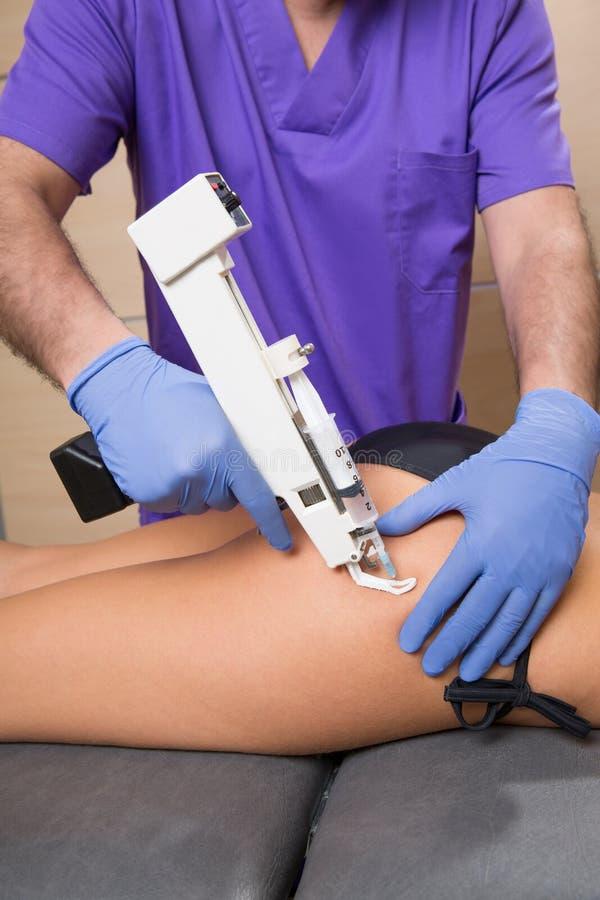 Het kanontherapie van Mesotherapy voor cellulite arts met vrouw stock foto's