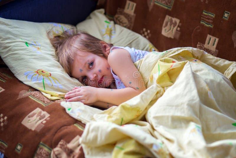 Het kind die waterpokken hebben ligt in een bed en heeft een rust stock fotografie