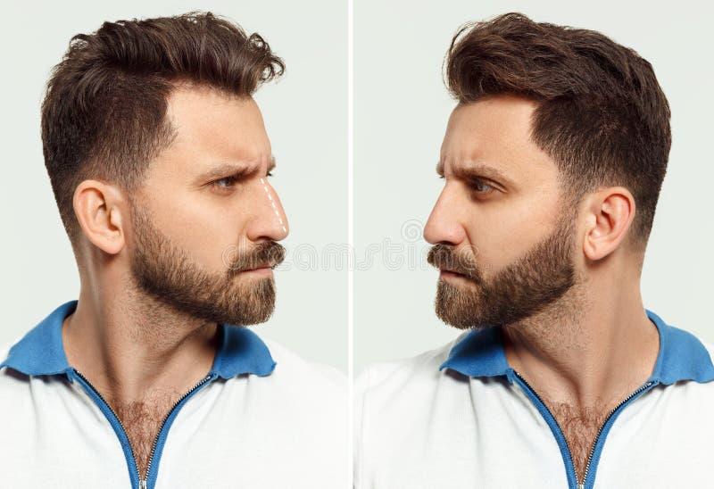 Het mannelijke gezicht before and after kosmetische neuschirurgie Over witte achtergrond royalty-vrije stock afbeelding