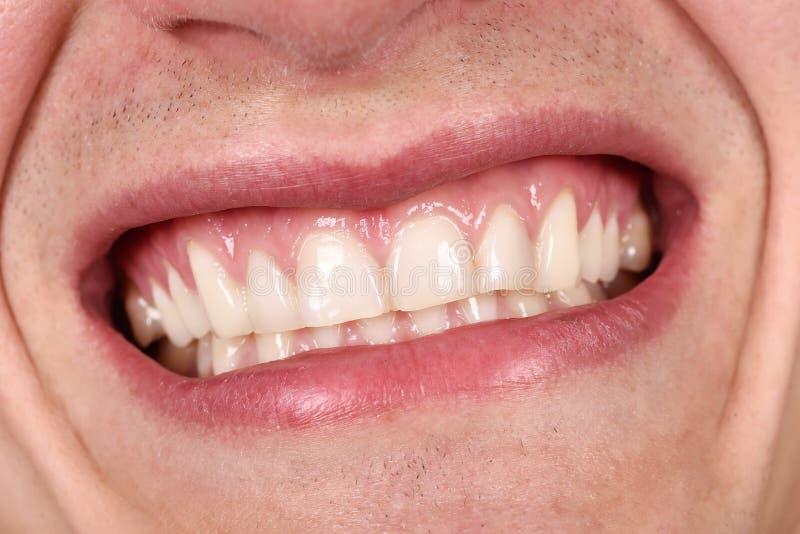 Het mannelijke mond lachen royalty-vrije stock fotografie