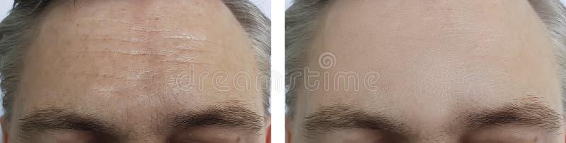 Het mannelijke voorhoofd rimpelt before and after de kosmetiekprocedures royalty-vrije stock afbeeldingen