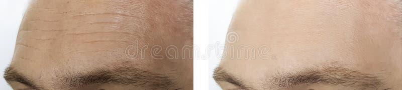 Het mannelijke voorhoofd rimpelt before and after de procedures van de verwijderingskosmetiek stock foto's
