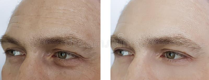 Het mannelijke voorhoofd rimpelt ogen, opzwellen before and after de procedures van de verwijderingskosmetiek royalty-vrije stock foto's