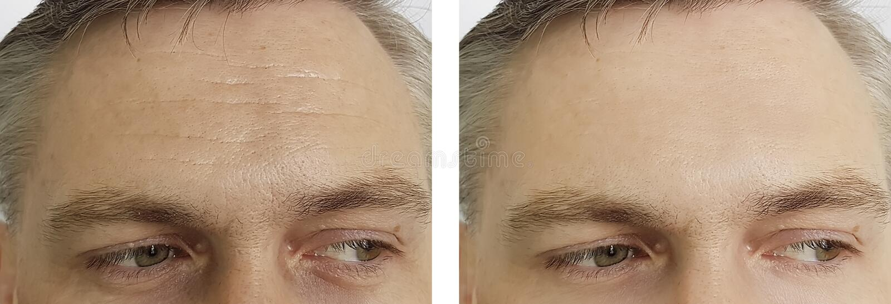 Het mannelijke voorhoofd rimpelt ogen, opzwelleneffect before and after de procedures van de verwijderingskosmetiek royalty-vrije stock afbeelding