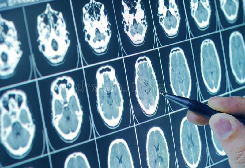 Het medische analyseren royalty-vrije stock foto