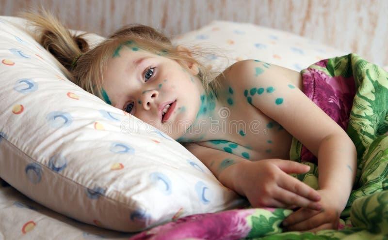 Het meisje lijdt aan waterpokken royalty-vrije stock fotografie