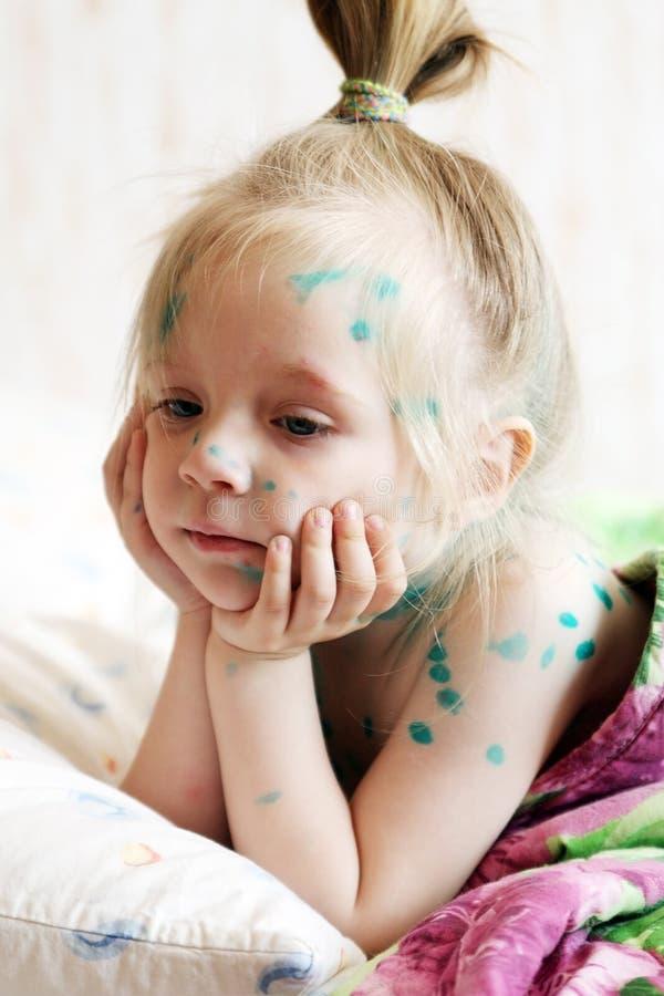Het meisje lijdt aan waterpokken stock afbeelding