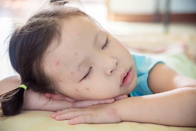 Het meisje met vlek op gezichtsslaap na wordt ziek stock afbeeldingen