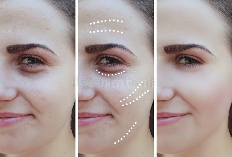 Het meisje rimpelt ogen before and after effect procedures stock foto