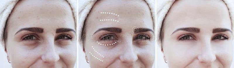 Het meisje rimpelt ogen before and after het effect van de correctieverwijdering behandelingsprocedures royalty-vrije stock foto