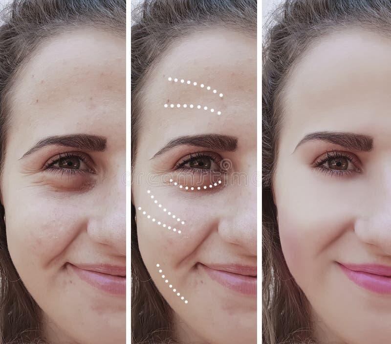 Het meisje rimpelt ogen before and after het effect van de opzwellentherapie behandelingsprocedures stock foto's