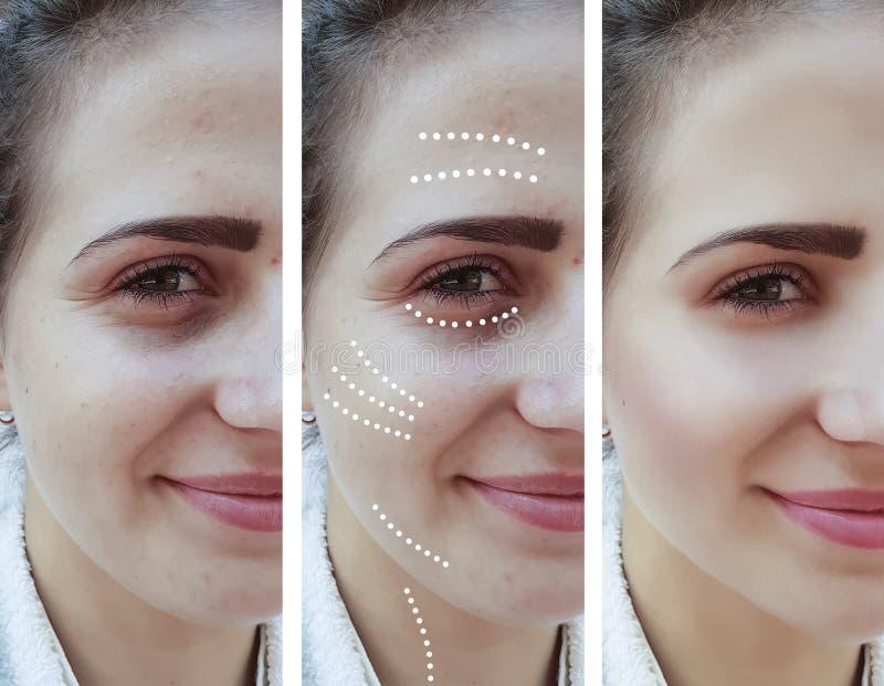Het meisje rimpelt ogen before and after procedures stock afbeelding