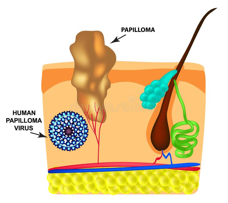 Het menselijke Papilloma-Virus veroorzaakt de vorming van papillomas op de huid Structuur Infographics Vectorillustratie  stock illustratie